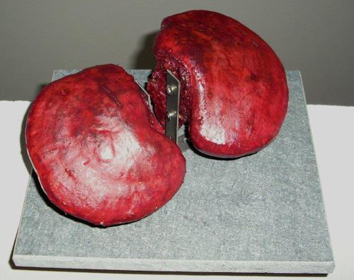 Imke Kreiser, Alveolen, Symbol, Contemporary Art